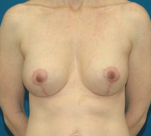 photo of after breast implant and breast lift
