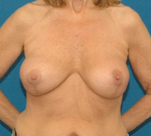 photo of after breast implant revision