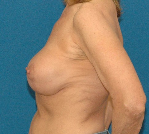 photo of after implant revision