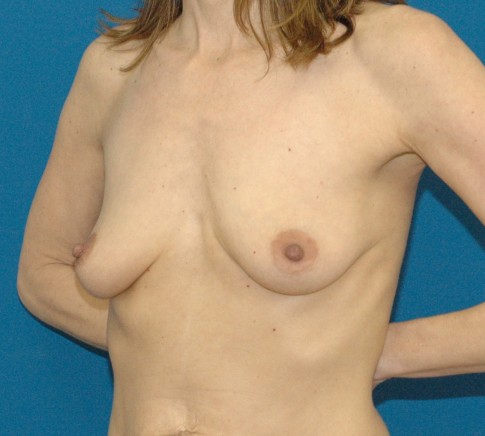 photo of Before breast implant and mastopexy